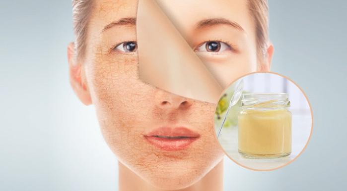Dùng sữa ong chúa giúp cải thiện làn da, làm chậm lão hóa